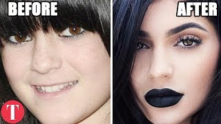 Download 10 Famous People Who Have Admitted To Plastic Surgery Video