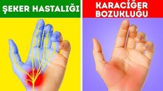 Download Ellerinizin Sizi Uyardığı 12 Sağlık Sorunu Video