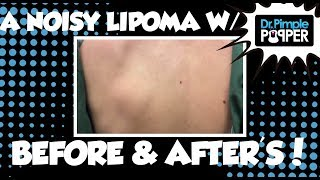 Download A Noisy Lipoma with Before and After Pics Video
