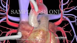Download Derivación o revascularización coronaria (CABG) Video