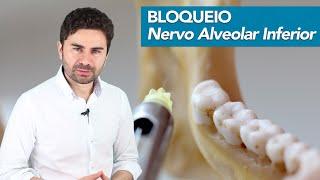 Download Passo-a-Passo do Bloqueio do Nervo Alveolar Inferior | Prof Fernando Giovanella Video