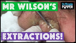 Download Mr. Wilson's Blackhead Extractions! #Throwback Video