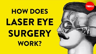 Download How does laser eye surgery work? - Dan Reinstein Video