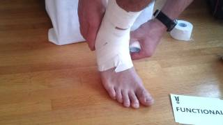 Download Ankle Taping | Tape Your Own Ankle (COMPLETE) Video