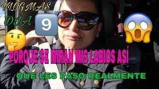 Download VLOGMAS DIA#9PORQUE SE MIRAN MIS LABIOS ASÍ🤔QUE LES PASO REALMENTE 😱 Video