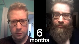 Download 6 Month Beard Growth Time Lapse Video