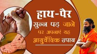 Health Benefits of Shirshasana Yog: Swami Ramdev | I Support Baba