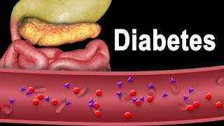 Download Diabetes Type 1 and Type 2, Animation. Video