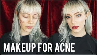 Download How To Cover Pimples with ACNE SAFE MAKEUP PRODUCTS Video