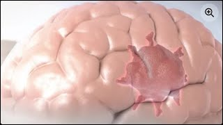 Download How To Improve Blood Circulation in Brain   Five Ways To Improve Blood Circulation To The Brain Video