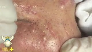 Download Nose Blackheads And Pimples Extraction On Face Acne Treatment 230830! Video