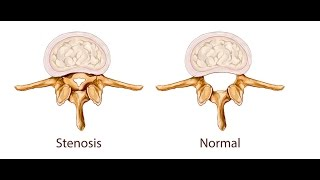 Download Spinal Stenosis: Cause and Correction Video
