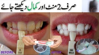 Download In Just 2 Minutes - TEETH WHITENING At Home - Turn Yellow Teeth To Pearl White and Shine Video
