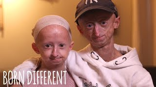 Download The Brother And Sister Who Age Too Fast | BORN DIFFERENT Video