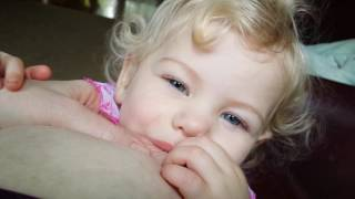 Download The Day Before her Surgery to fix her chipped teeth: Will help resolve Breastfeeding Nipple Pain!!! Video