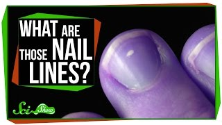 Download What Are Those Lines on My Nails? Video