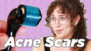 Download People With Acne Scars Try Micro-Rolling Video