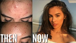 Download HOW TO REALLY GET RID OF ACNE IN ONE WEEK (WORKS!) Video