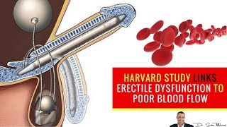 Download 💋 Harvard Study Links Erectile Dysfunction to Poor Blood Flow - by Dr Sam Robbins Video