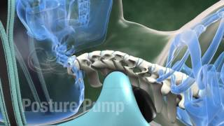 Download The Greatest Device for Spinal Health! Video