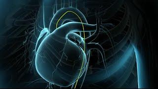 Download Angioplastía Coronaria Video