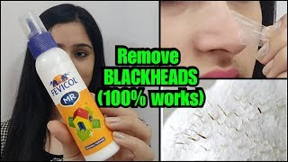 Download HOW TO REMOVE BLACKHEADS PERMANENTLY - EASY AND PAINLESS METHOD Video