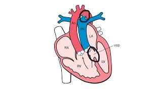 Download Double Outlet Right Ventricle Video