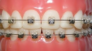 Download Getting Braces - Do They Hurt? Video