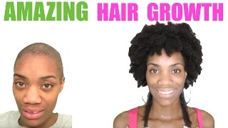 Download I Naturally Cured My Alopecia - 2 Years Alopecia Free - No Bald Spots Video