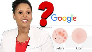Download Doctors Answer Commonly Googled Questions About Skin Care Video
