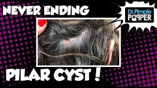 Download A Never Ending Pilar Cyst Video