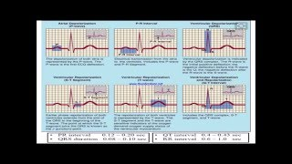 Download Normal and abnormal ECG Video