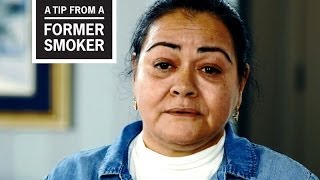 Download CDC: Tips From Former Smokers - Felicita's Story Video