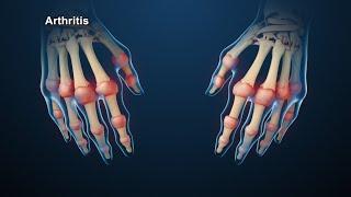 Download Rheumatoid Arthritis | Nucleus Health Video