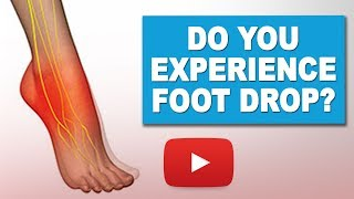Download Exercises to Manage Foot Drop | MS Exercises Video