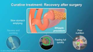 Download Pancreatic Cancer: Treatment and Outcomes Video