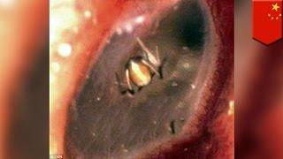 Download 귀신 씌인 줄 알았더니...거미 한마리가 귀 속에 살고 있어 Video