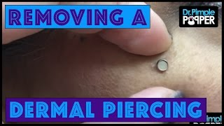 Download ″Popping Out″ a dermal piercing on the Right Cheek Video