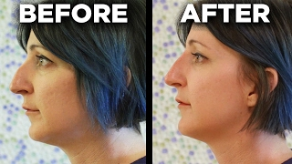 Download People Get The 5-Minute Nose Job Video