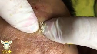 Download Cystic Acne, Blackheads And Pimples Extraction On Face Acne Treatment 131110! Video