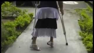 Download POLIO pamela stair challenge on polio legs Video