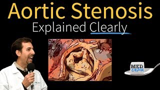 Download Aortic Stenosis Explained Clearly - Diagnosis and Treatment Video