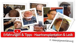 Download Vorher Nachher 12 Monate Ergebnis Haartransplantation Video
