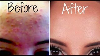 Download How I Got Rid Of My Acne FOREVER! Video