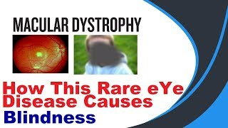 Download Macular Dystrophy (hindi) Video