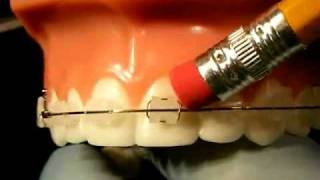 Download Bracesquestions - Braces Problems: Pain, Poking Wire, Sore Teeth, Broken Bracket Video