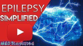 Download EPILEPSY Made Easy - Types,Classification, and Diagnosis Video