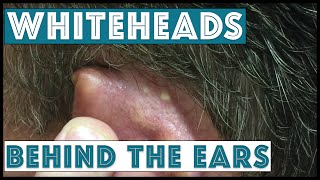 Download Whiteheads behind the ears, extracted Video