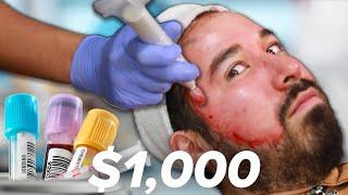 Download I Got A $1,000 Blood Facial Video