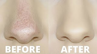 Download HOW TO STOP FOUNDATION RUBBING OFF YOUR NOSE!   OILY SKIN TRICKS! Video